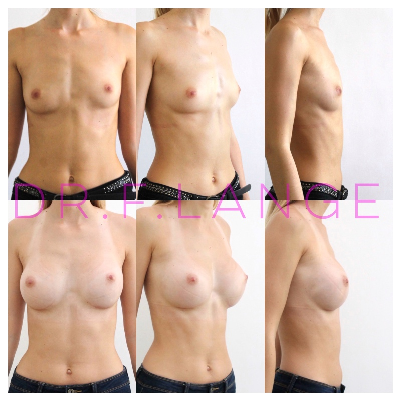 FullSizeRender 7 Augmentation mammaire