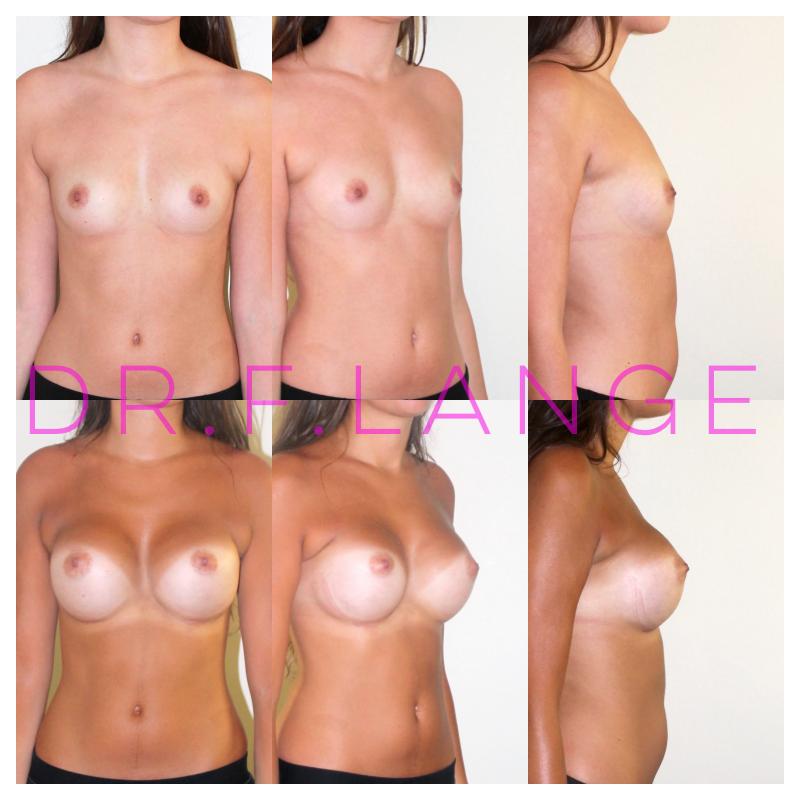 IMG 4423 Augmentation mammaire