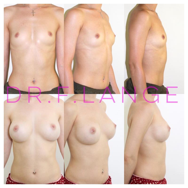 IMG 4424 Augmentation mammaire