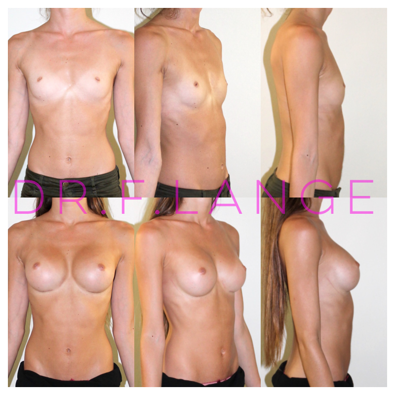 IMG 4425 Augmentation mammaire