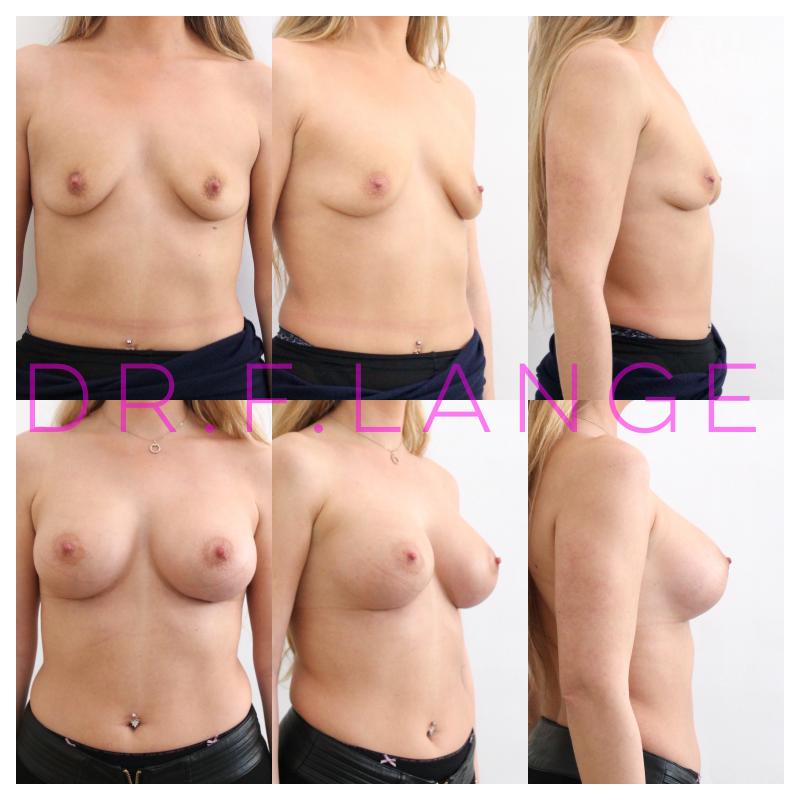 IMG 4426 Augmentation mammaire