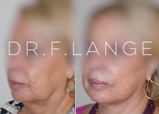 IMG 6713 Lifting cervico facial
