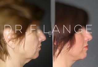 IMG 6714 Lifting cervico facial