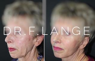 IMG 6716 Lifting cervico facial
