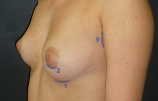augmentation1 Augmentation mammaire