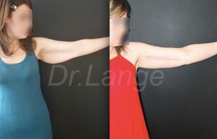 liftingbras1 Lifting des bras et des cuisses