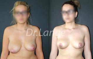 vignettemalformation Malformation mammaire